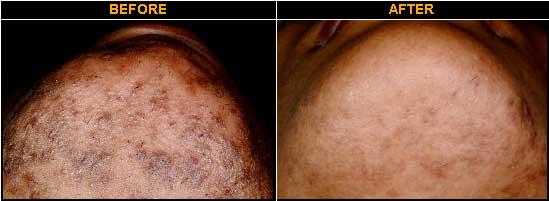 Before and After Photo of Patient being treated for Ingrown Hairs with Ultimate Light